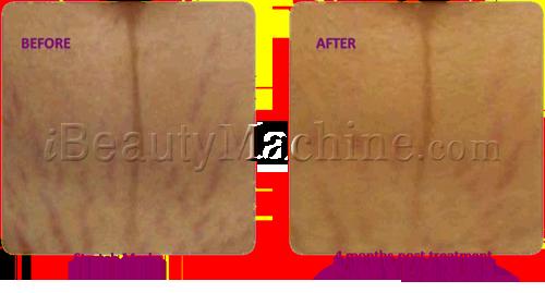 microneedle pen professional, micro needling stretch marks, Dermal needling