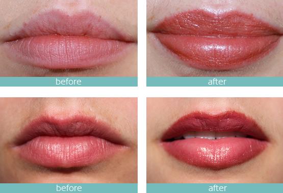 micro-pigmentation-lips-needle tips