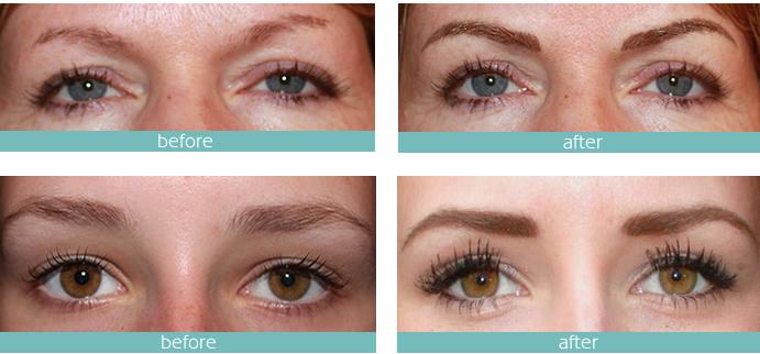 micro-pigmentation-eyebrows-needle tips