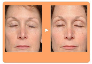 factional rf facial wrinkle removal before and after