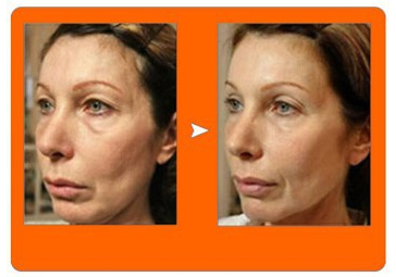 matrix RF skin tightening before and after