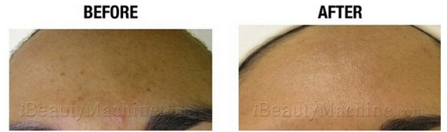 Personal Microderm before and after
