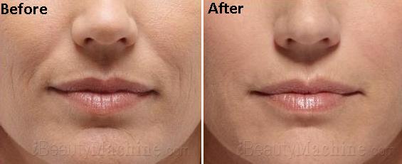 Ultrasound Facial skin care BA photos