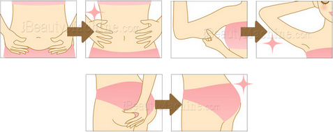 ultrasound fat reduction, ultrasound body slimming