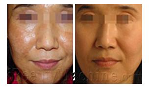 Pigmentation removal BA photos
