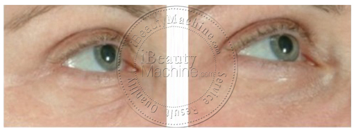 eye care before and after photos