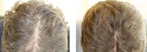 Best Hair Loss treatment comb before and after