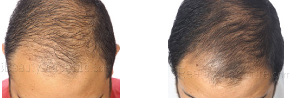 hotselling hair loss solutions before and after