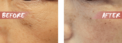 facial mesotherapy Treatment