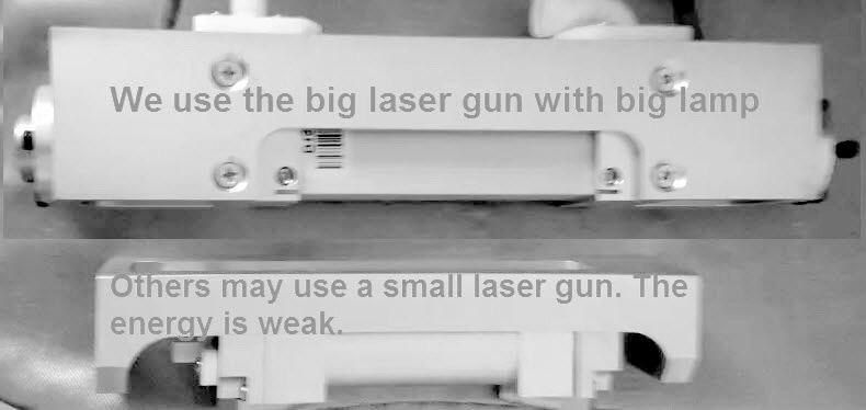 laser tattoo remvoal