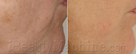 RF skin tightening BA photos