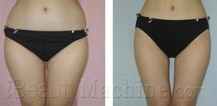 cavitation fat removal results