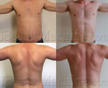 lipo suction fat removal BA