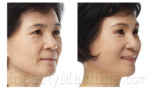 cheek wrinkles removal BA photos