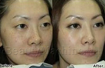 LED pigmentation removal before and after