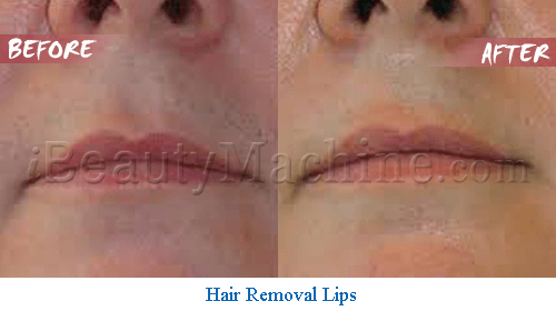 diode laser hair removal on lips
