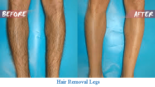 diode laser hair removal on legs before and after