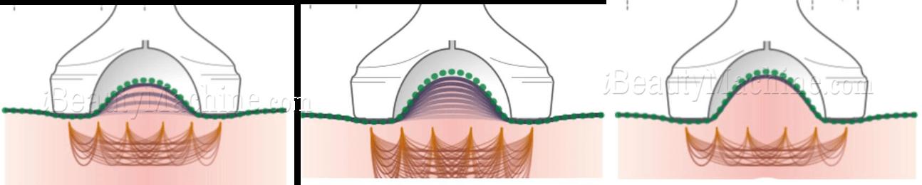 ultrasonic liposuction machine for sale