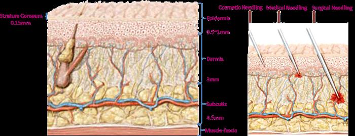 derma microneedle, derma rolling, dermaroller
