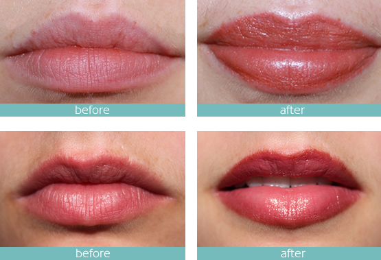 micro-pigmentation-lips-needle tips
