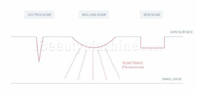 Rejuran S acne-scars removal procedure