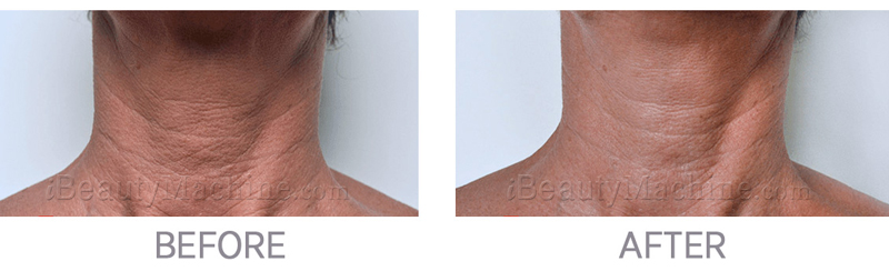 TEOSYAL redensity 1 before after