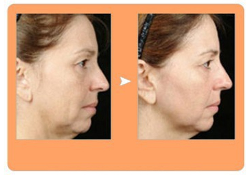 thermage RF skin lifting before and after