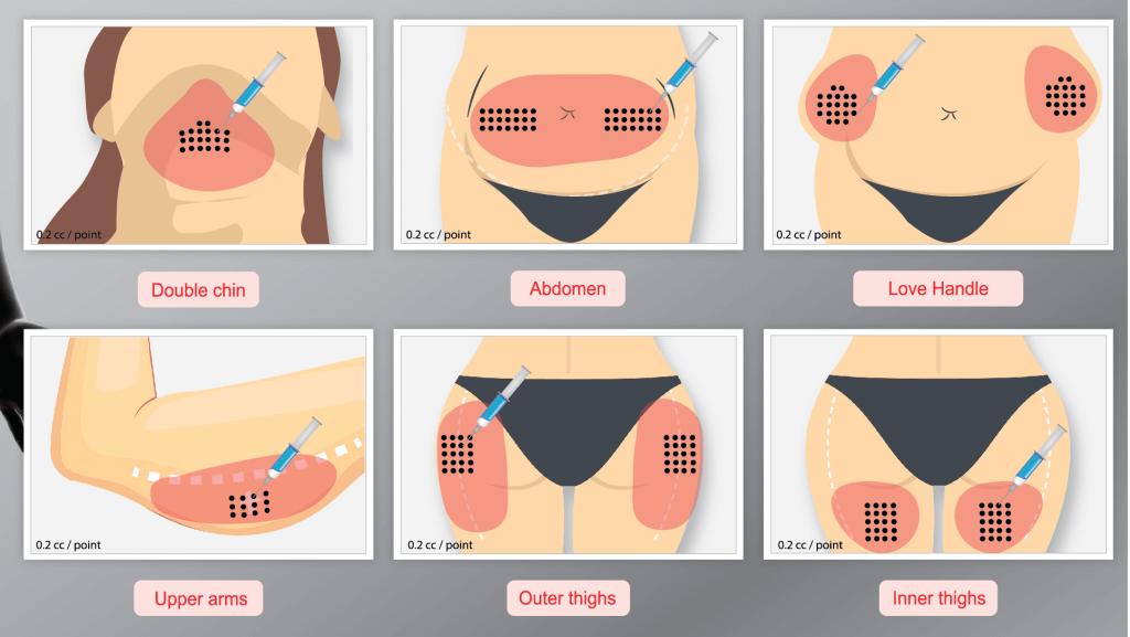 aqualyx treatment areas