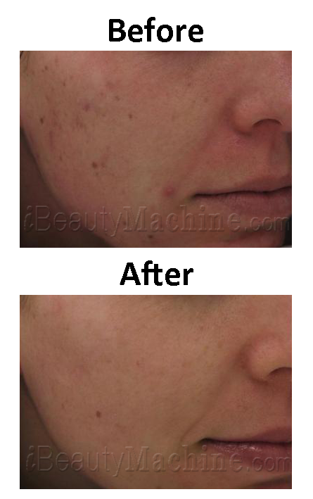 Ultrasound Facial skin care BA photos