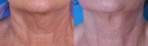 RF skin tightening BA photos
