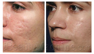 Acne scars removal BA photos
