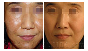 Pigmentation removal BA photos