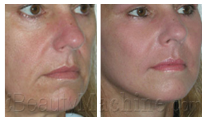 Rough wrinkle and perioral wrinkles removal BA photos