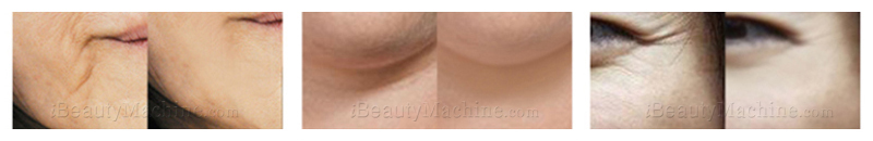 before and after wrinkle removal
