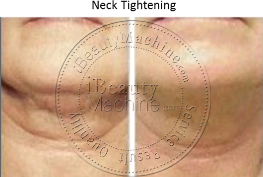 Neck Tightening
