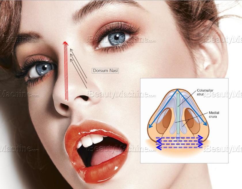 InstaLift™ Mono PDO Thread Lift 27Gx60mmx90mm | E O  Sterilization|  Non-Toxic | Non-Pyrognic | Heavy Metal Free | 50ea/pack