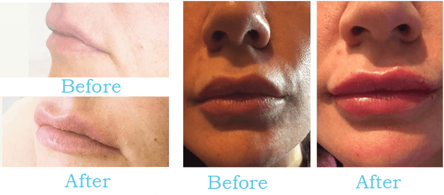 iJetPen | Professional needle-free mesotherapy for hyaluronic acid  Injection | Hyaluronic Pen | Hyaluron Pen | Augmentation of lips
