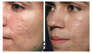 Acne scars removal BA photos